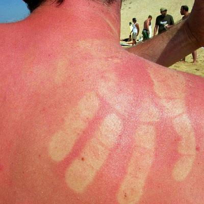 how to avoid jalapeno burns